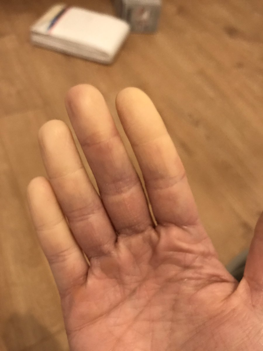For 6 days I lived in a house with no central heating. Heating is back on now, and NOW my raynauds appears?!
