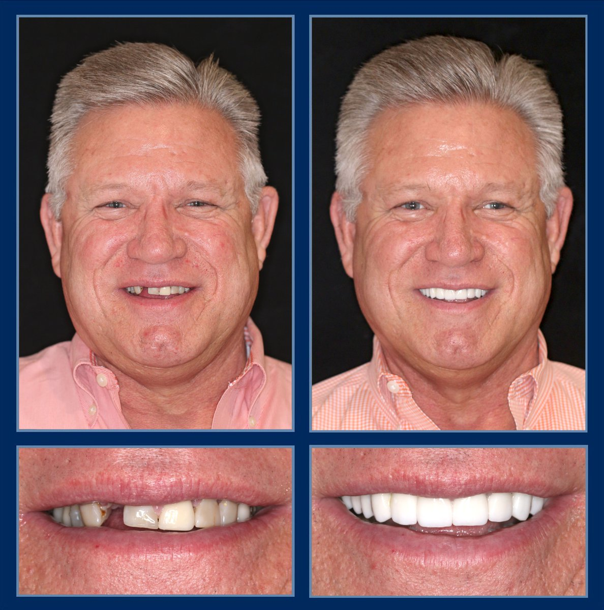 Years of wear and tear can leave behind a smile that is chipped, crooked, misaligned, discolored and yellowing.  Luckily, it doesn't take near that long to correct those common flaws. Just 2 days! http://TheCosmeticDentistsOfAustin.com #CosmeticDentist #SmileMakeover #ReconstructiveDentistry pic.twitter.com/lll2HikBxV