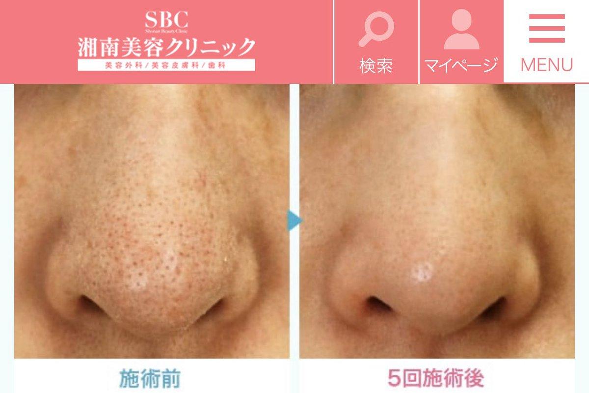 治療 いちご 鼻 Bスポット療法について|和歌山県 岩出市