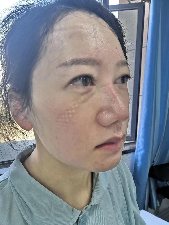 Potret wajah tim medis pasien virus corona yang berbekas masker