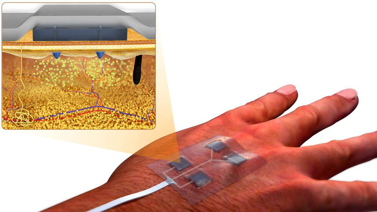 Researchers have actually developed a 'smart' bandage that helps diabetes patients heal faster.   https://www.digit.in/news/science-and-technology/researchers-develops-smart-wirelessly-controlled-bandage-that-could-be-helpful-for-diabetic-patients-52390.html…pic.twitter.com/wOap3djFn4