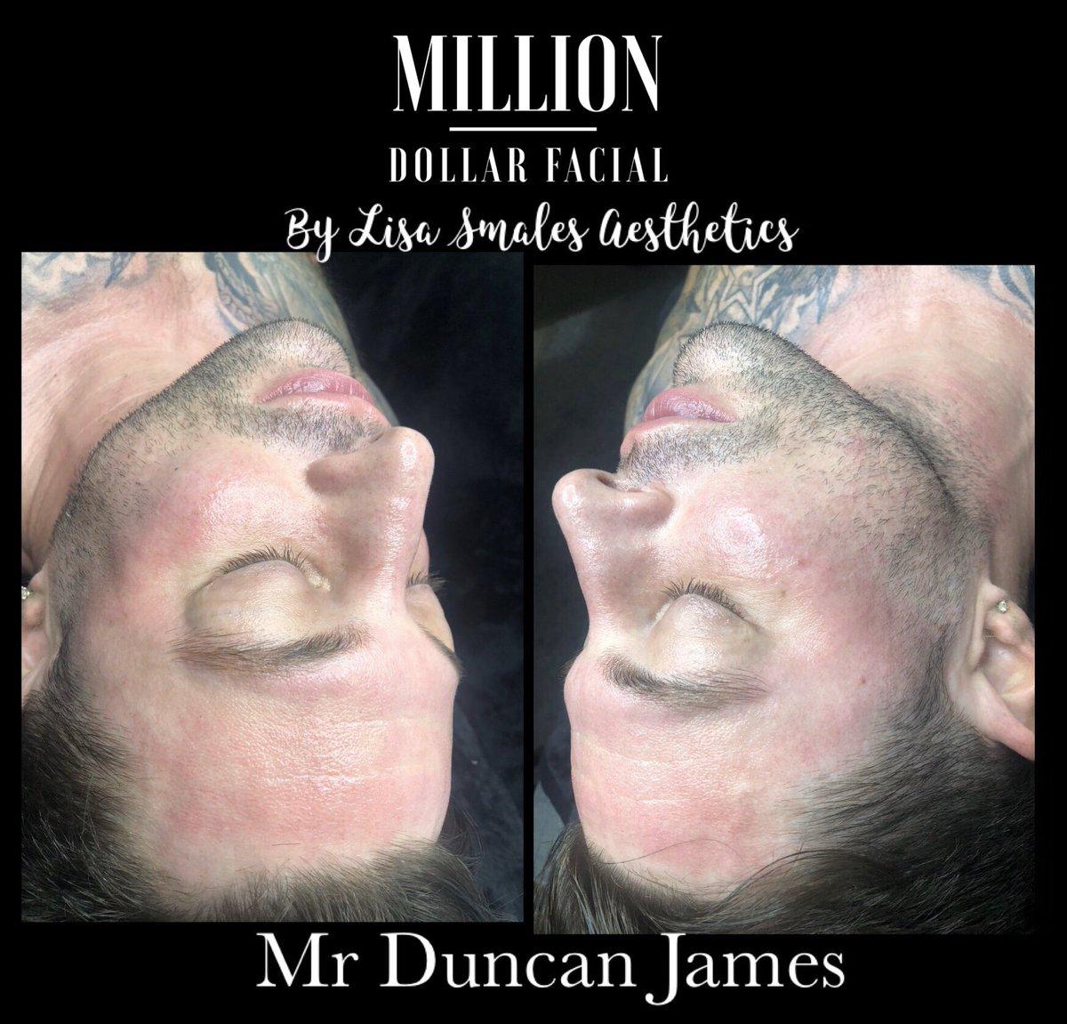Don't feel Blue !! One Love #Blue #onelove #Duncanjames  #Milliondollarfacials #milliondollarfacial #Carbonpeel #miraclemask #dermaplane #dermaplaning #skincare #facial #beauty #hydrafacial #dermaplaningfacial #facials #microneedling #skinneedlng  #skintherapist #glowingskinpic.twitter.com/MdZOTks5sU