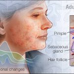 Image for the Tweet beginning: #HomeRemedies: #Acne is most common