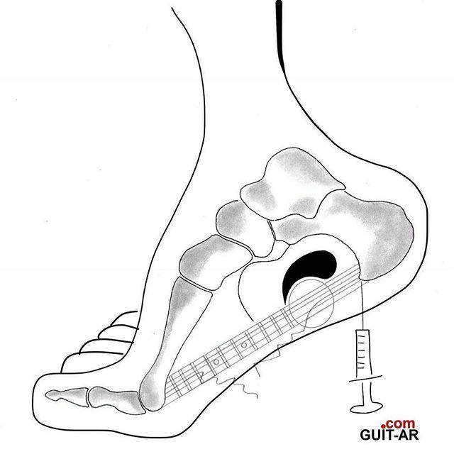 Another broken D string Monday  jab 💉  by Dr. Juan Ponte#foot #anatomy #bones #orthopaedics #plantarfasciitis #orthopaedicsurgery #podiatry #blackandwhite #jab #syringe #guitarra  #guitar  #guitarbyjuanponte #drawing #guitardrawing #sketch #art #creative  #stratocaster  #j…