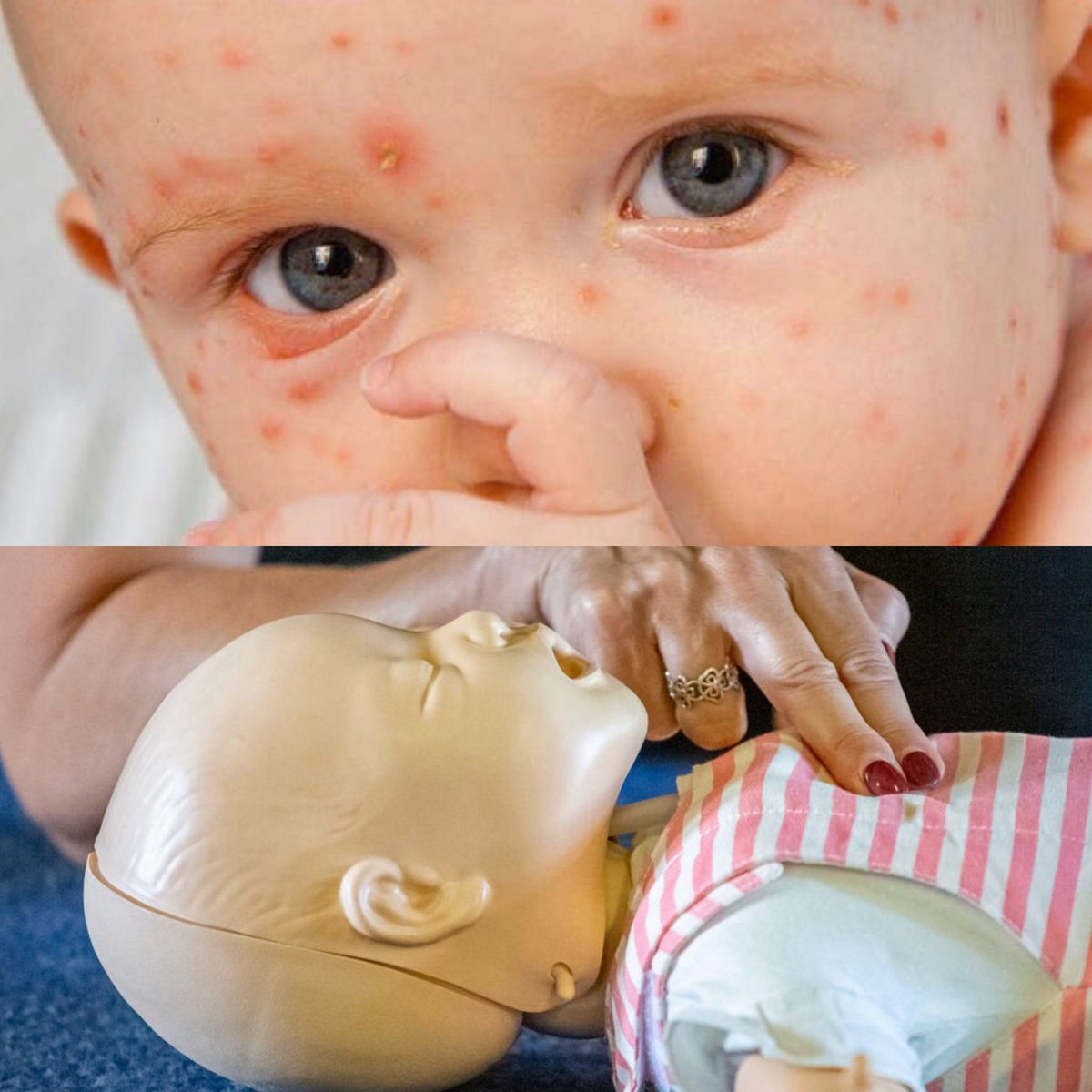 Want to learn baby & child CPR or complete a full paediatric course? Contact our team for details on our open courses or why not hold a talk in your own home? From just £10pp #cpr #babycpr #childcpr #paediatric #babyfirstaid #childfirstiad #firstaidtraining #firstaidessexpic.twitter.com/S0UScIBRPZ