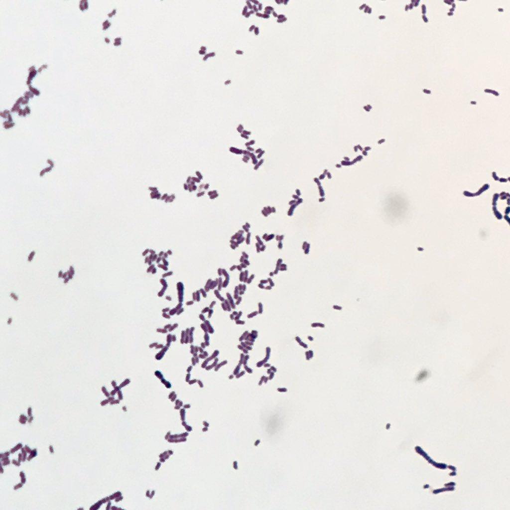corynebacterium glucuronolyticum способ заражения при простатите