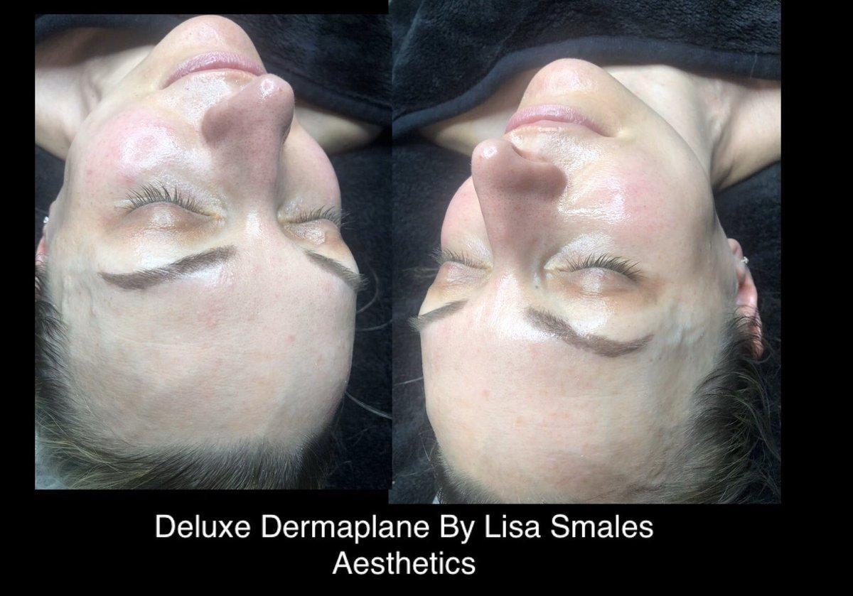 You Glow Girl  Deluxe Dermaplaning £40.00   #milliondollarfacial #Carbonpeel #miraclemask #dermaplane #dermaplaning #skincare #facial #beauty #dermaplaningfacial #facials #microneedling #chemicalpeel #leeds #Horsforth #dermaplanefacial #selfcare #glowyskin #LisaSmalesAestheticspic.twitter.com/QyrKigYuPQ