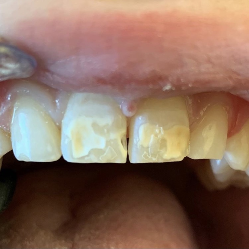 """""""This case is a mixture of composite bonding work plus #iconbydmg. The weakened enamel frequently leads to cavities! """" repost by @ryesmilespediatricdentistry (insta account  Click the link to learn more about #IconByDMG, https://t.co/UstzbUi2P4 https://t.co/2xDiH7Wu6c"""
