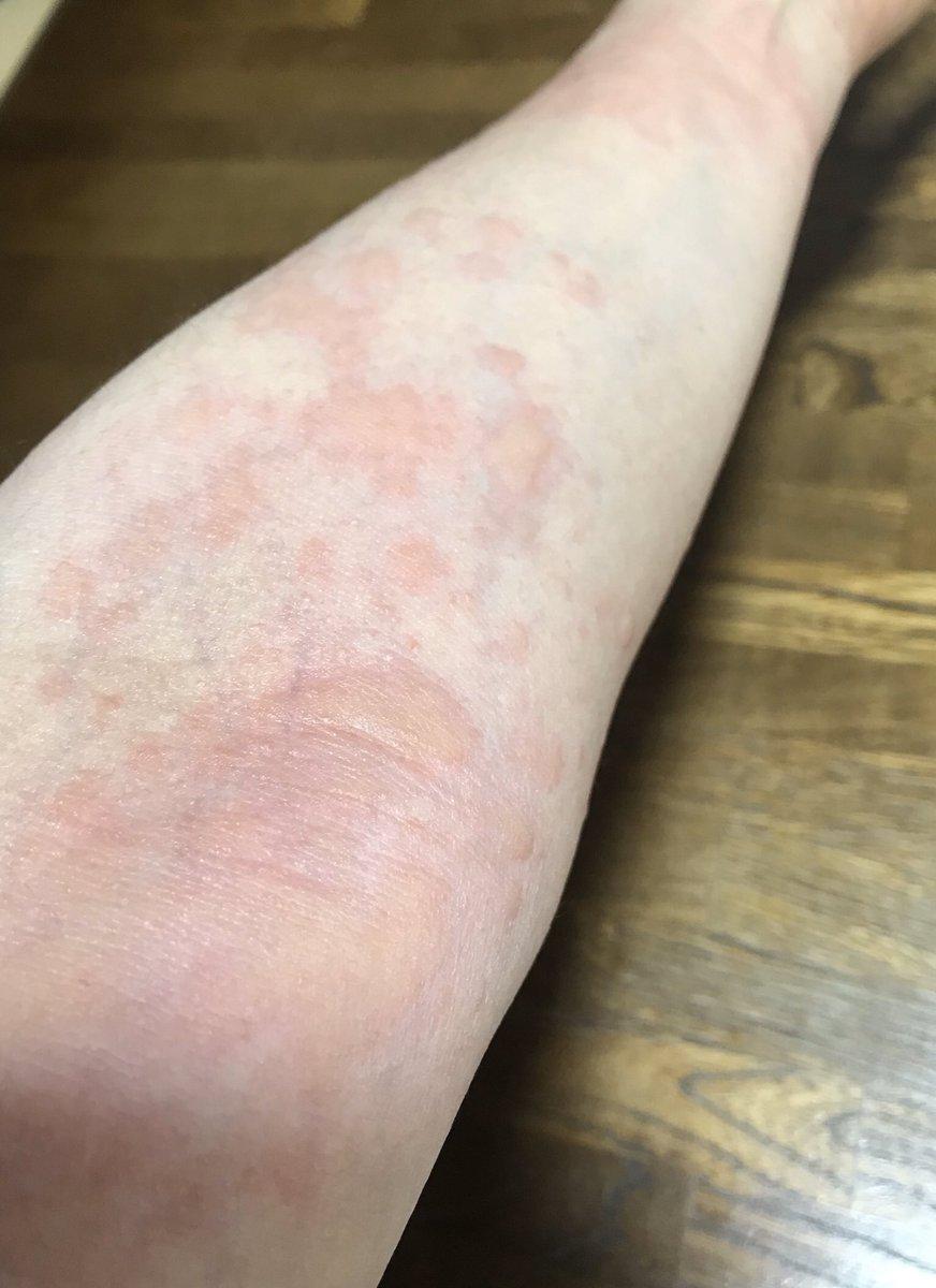 かゆみ 寒暖 差 アレルギー