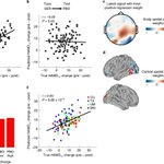 Image for the Tweet beginning: An electroencephalographic signature predicts antidepressant