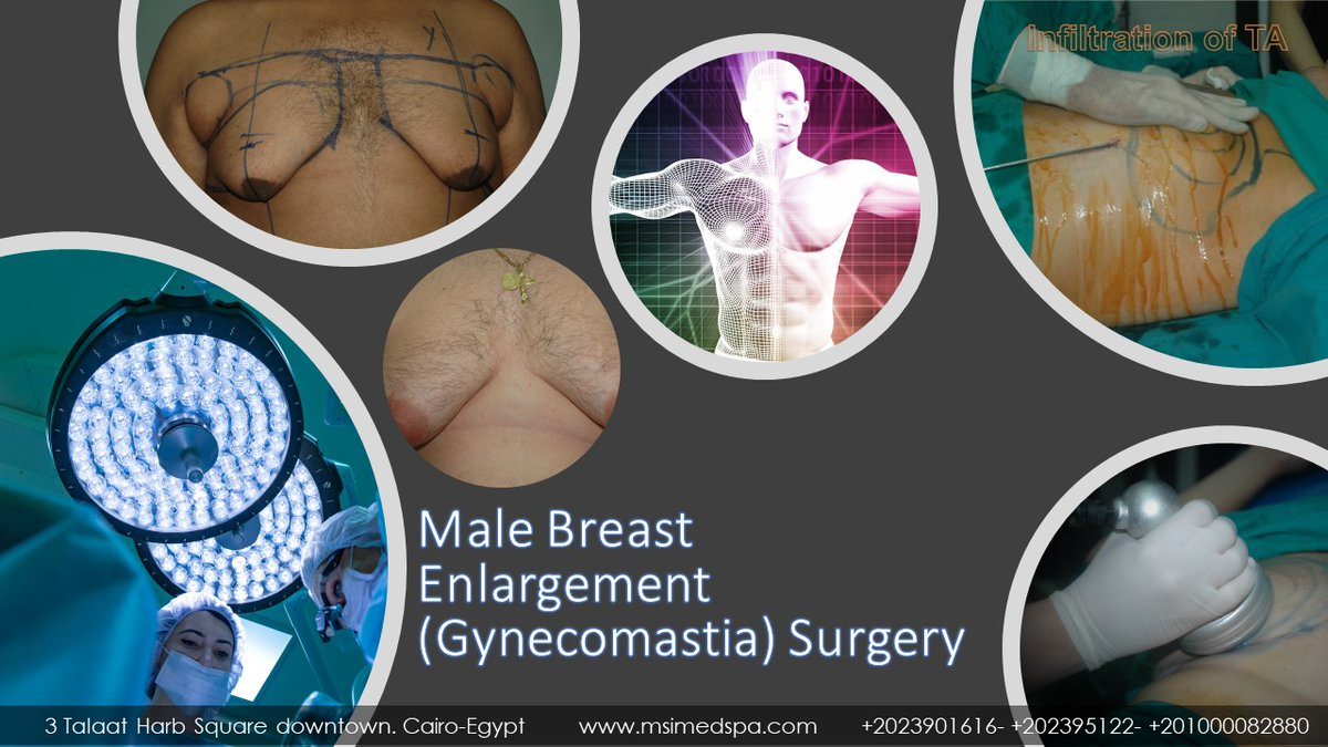 Gynecomastia and male breast reduction faqs