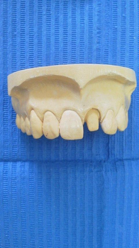 前歯2本だけなら、二本の歯を削ってセラミッククラウンを被せるのが最善策だと思います。「矯正は、噛み合わせ全体が変わる、つまり、本来のバランスの取れた状態を変える→リスクが大きい!」「インプラントは、顎骨に穴をあける→感染のリスクが生じる!」という可能性があります。