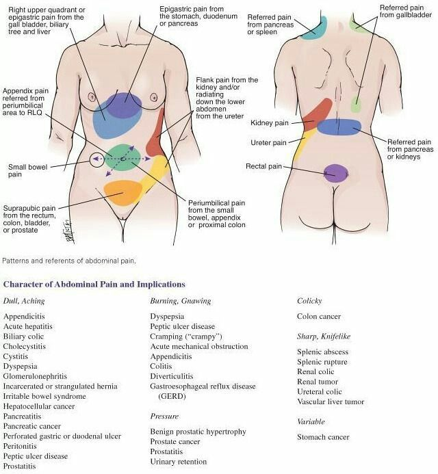 Medictests Com On Twitter Quick Reference Abdominal Pain Chart