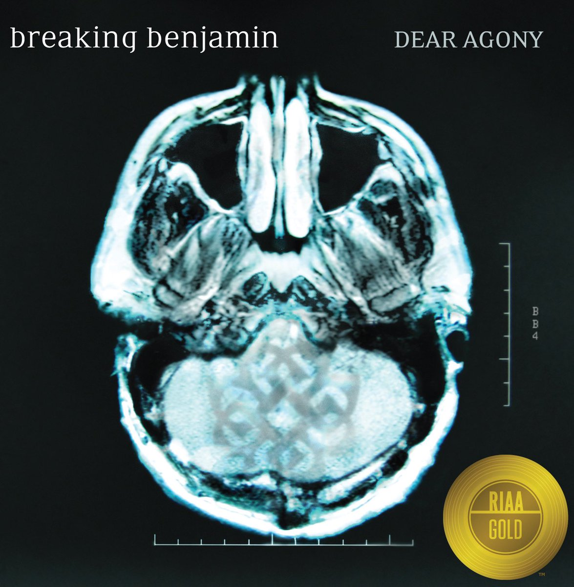 GOLD CERTIFIED. 📀 @breakingbenj's Dear Agony is now @RIAA Gold! Listen here: hollywoodrecs.co/DearAgony
