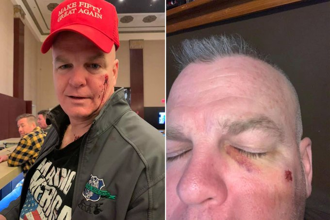 Ex-NYPD cop punched at his Nashville birthday party after red cap mistaken for MAGA hat…