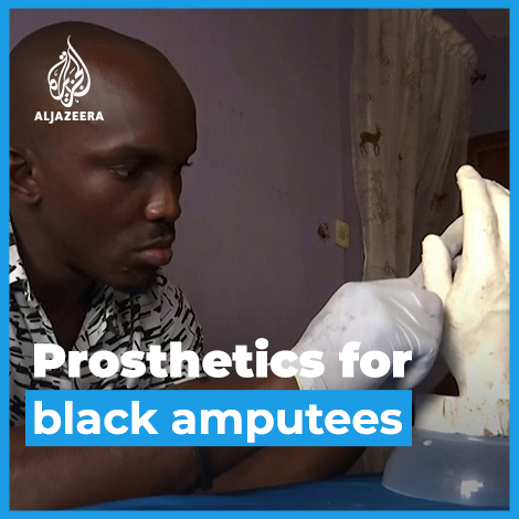 This Nigerian sculptor is on a mission to create hyper-realistic prosthetic limbs for black amputees.