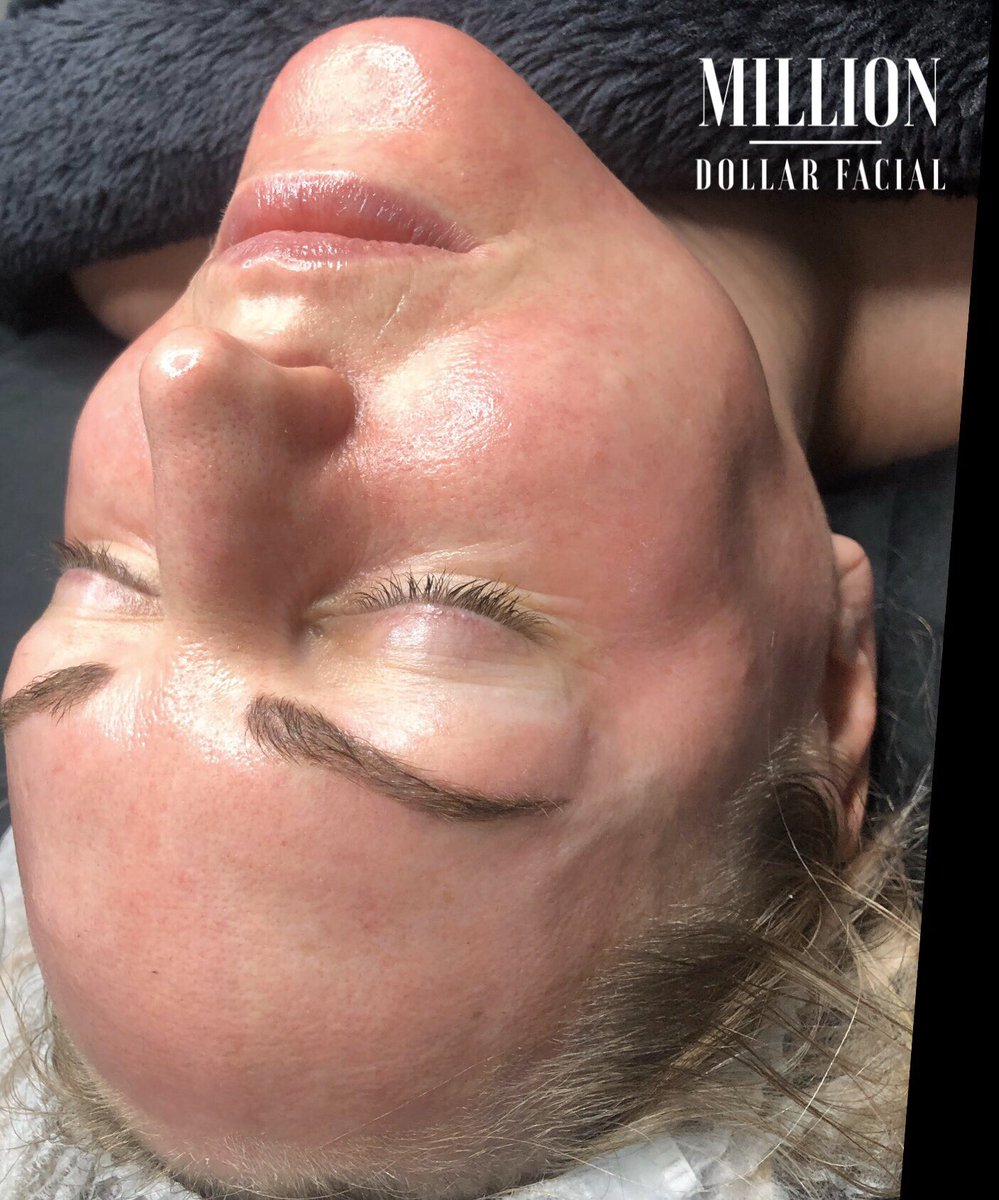 Gorgeous skin to work on this morning!   Prevention is better than the cure !  Start to look after your skin sooner rather than later !  Your skin will thank you for it in 10 years time !  #Milliondollarfacials #milliondollarfacial #Carbonpeel #miraclemask #dermaplaneukpic.twitter.com/Dv1LTY9Oz2