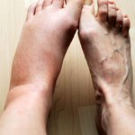 Image for the Tweet beginning: Concerns about swollen legs.
