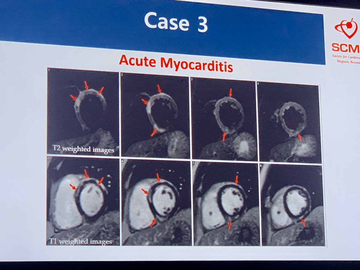 Some case examples of 🧲myocarditis 🧲stress induced CM 🧲MI 🧲 Meth induced CM #SCMR2020