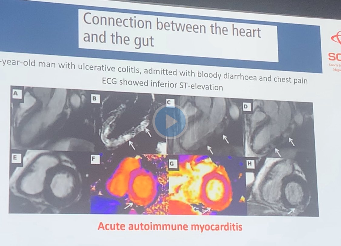 Some more case examples Patients with #MiNOCA with diagnosis made by the #whyCMR #SCMR2020