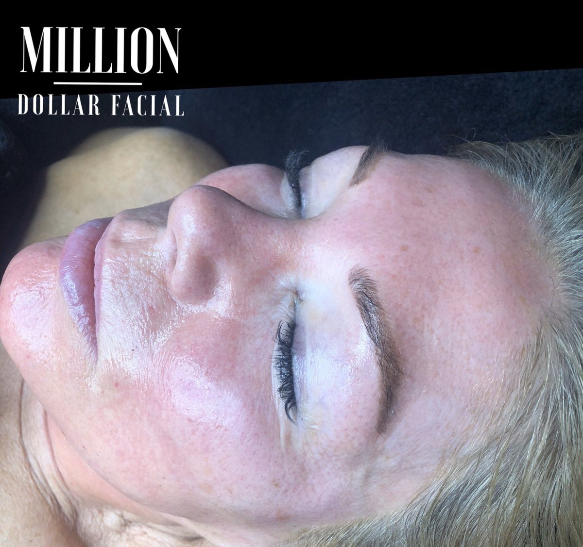 Another happy client   Be good to your skin you will wear it for the rest of your life !  #Milliondollarfacials #milliondollarfacial #Carbonpeel #miraclemask #dermaplane #dermaplaning #skincare #facial #beauty #dermaplaningfacial #facials #trending #luxaryfacialspic.twitter.com/hV90nO0b4R