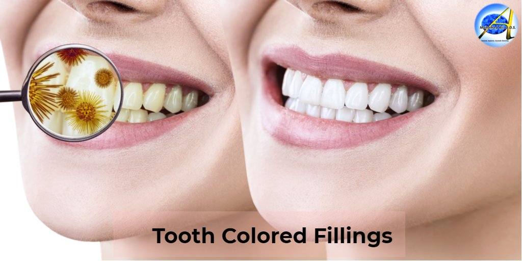 Dental composites or tooth-colored fillings repair small cavities and blend in naturally, so you often can't tell there's been any dental work.  Tooth-colored fillings for healthier teeth. https://www.malidds.com/tooth-colored-fillings/… #Malidds #ToothColoredFillings #DentalCare #HealthyTeethpic.twitter.com/UNpQUpRLo5