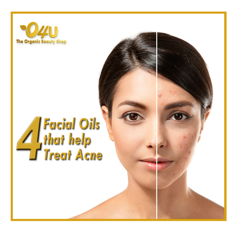 A drop of oil is all you need to take care of your skin! 100% Fresh, Raw & Organic Ingredient Rich in Anti-oxidants Made manually in small batches  #o4u #o4utheorganic #o4uorganicshop #organic #luxurybrand #veganproducts #crueltyfree  #acne #essentialoil #organicbeautyproducts pic.twitter.com/CC3q5yRLTe