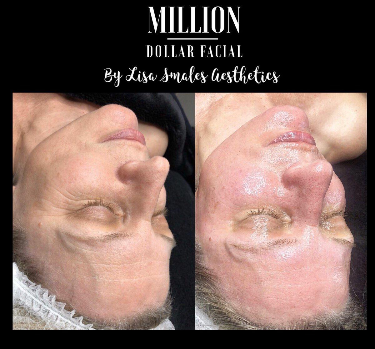 Looking and feeling a Million Dollars #Milliondollarfacials #milliondollarfacial #Carbonpeel #miraclemask #dermaplane #dermaplaning #skincare #facial #beauty #hydrafacial #dermaplaningfacial #facials #microneedling #skinneedlng  #skintherapist #glowingskin  #chemicalpeel #leedspic.twitter.com/6qkwChb429