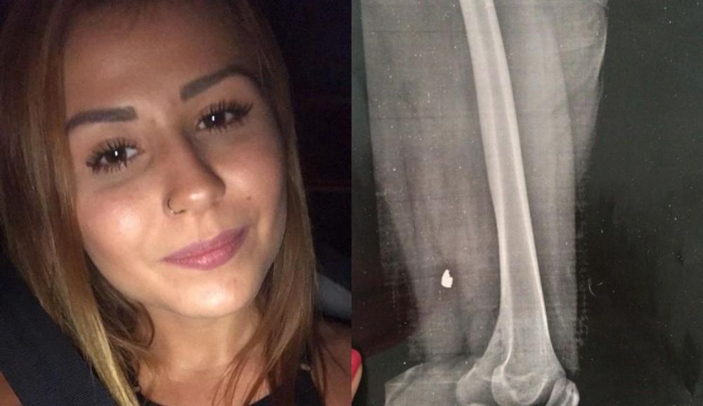 Raio X mostra bala alojada na perna de vendedora ferida em bloco de carnaval de SP https://glo.bo/39Num0O #G1