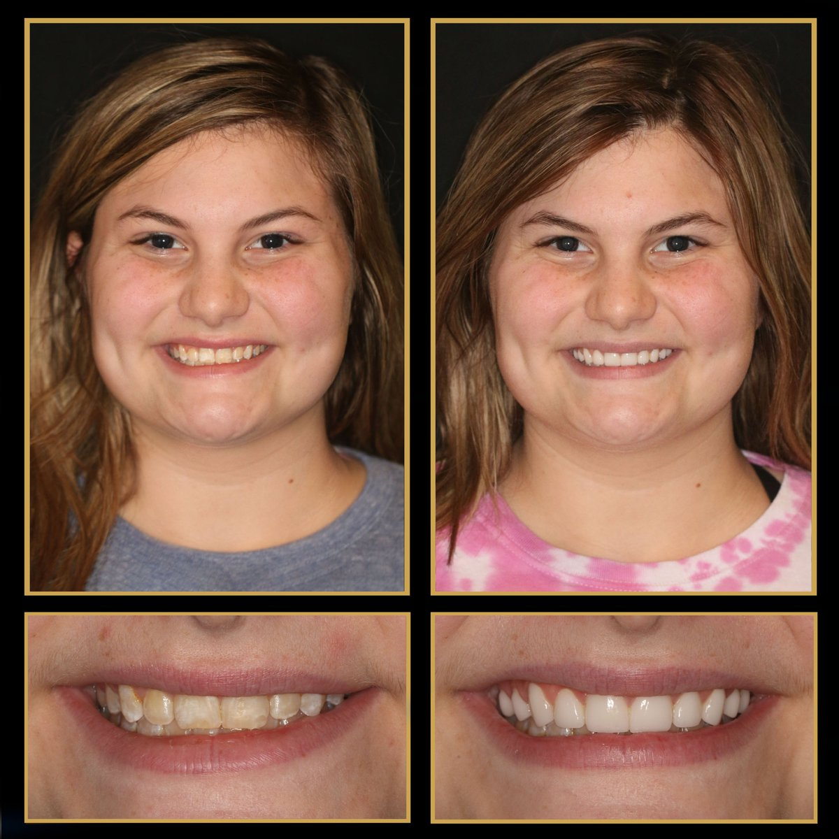 When it comes to your smile, we want to give you a beautiful, natural-looking smile. Our patients have a choice with porcelain #veneers, crowns, bridges, #dentalimplants and #reconstructivedentistry to pick their perfect shade of white. http://TheCosmeticDentistsOfAustin.com #CosmeticDentistpic.twitter.com/tCNCgGCvRh