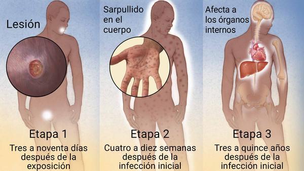 la enfermedad sífilis tiene cura