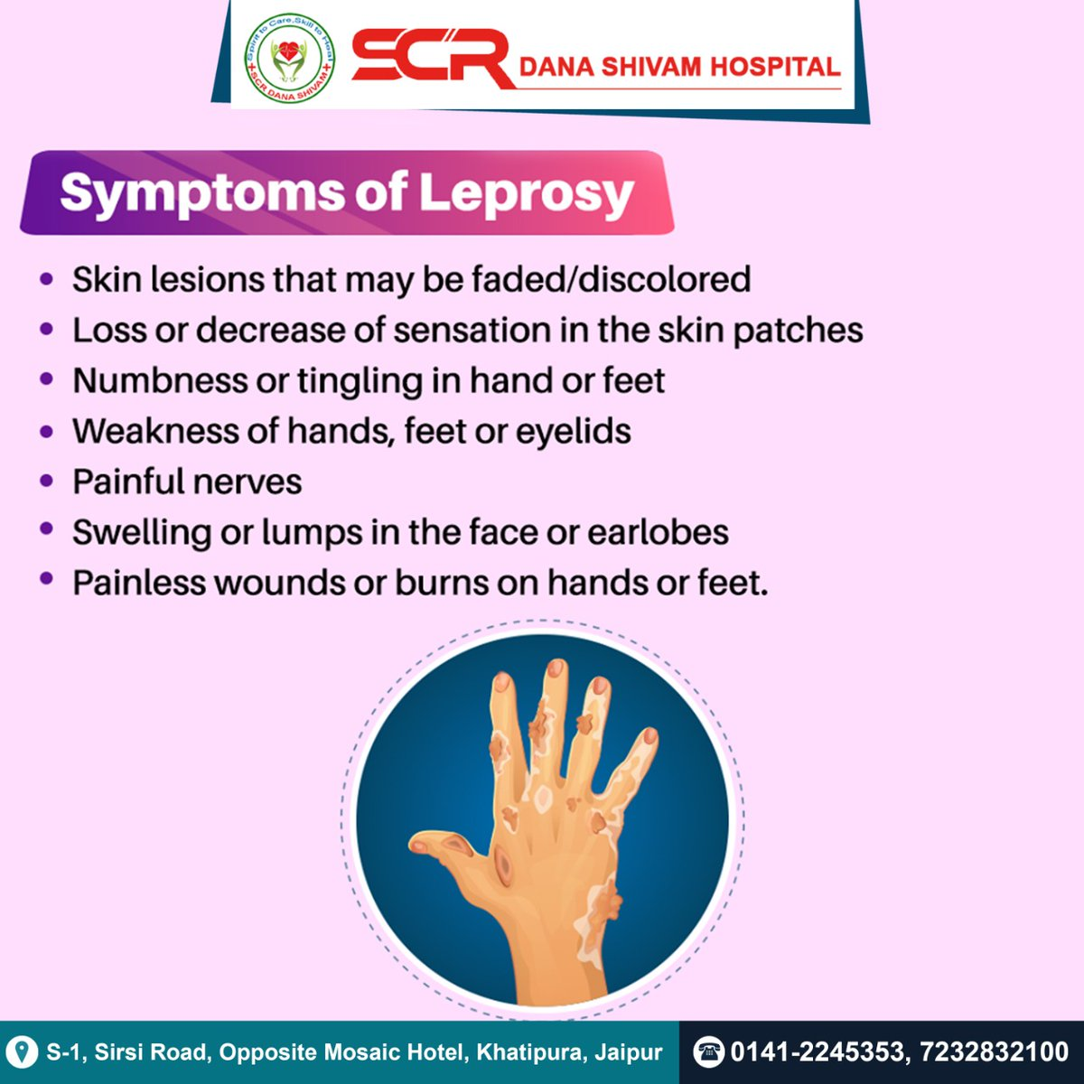Symptoms of leprosy  - Skin lesions that may be faded/discoloured - loss or decrease of sensation in the skin patches - numbness or tingling in hand or feet  #Leprosy  #HealthyLiving  #healthcareforall  #healthtips   #SCRDanaShivam  #healthcare    @WHO  @ihissues  @NHPINDIA  @MoHFW_INDIA
