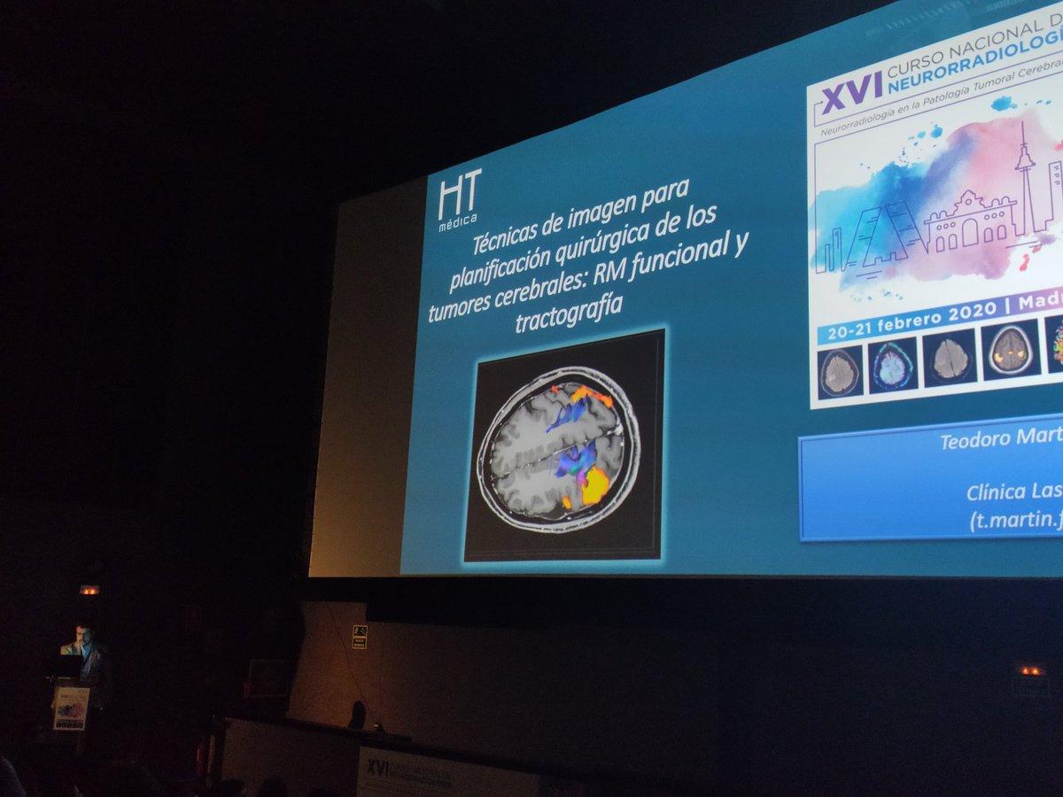 resonancia magnética próstata radiológica romana multiparamétrica y