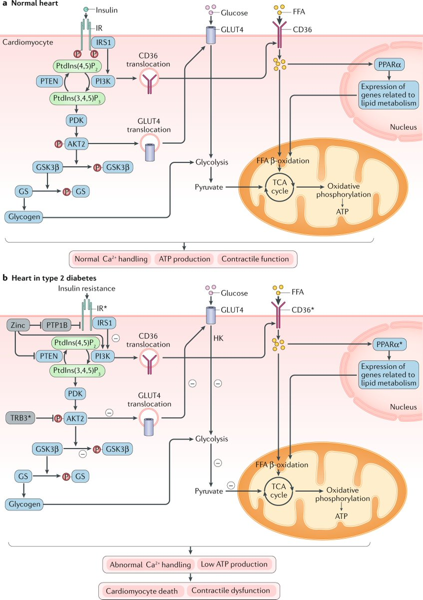 test Twitter Media - New #Review online: mechanisms underlying the development of diabetic cardiomyopathy and heart failure by Lu Cai and colleagues | https://t.co/WPLKoY270F  @UofLMedicine #diabetes #diabeticcardiomyopathy https://t.co/ZhuVjbyj3z