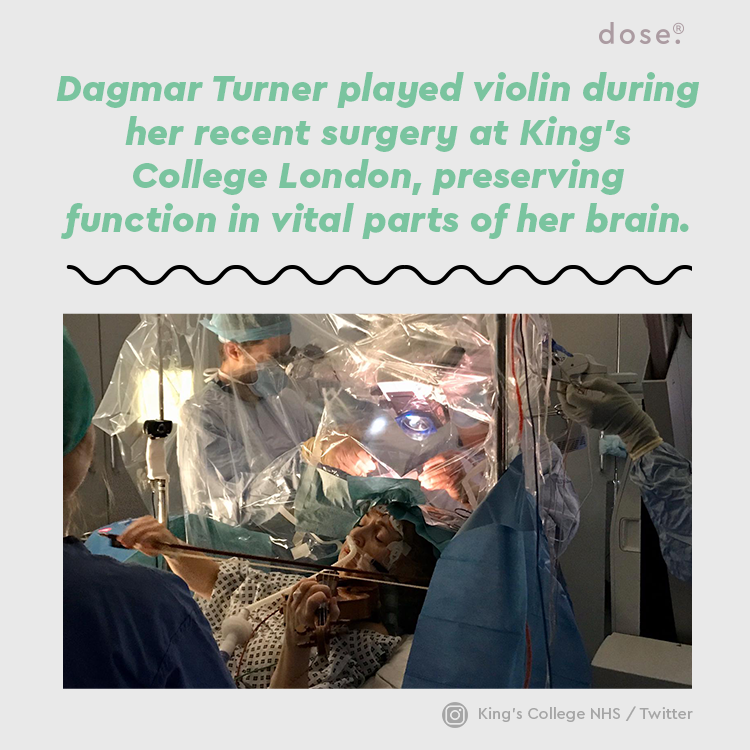 A patient @KingsCollegeNHS played the violin while surgeons operated on her brain so that she could maintain that particular brain function.
