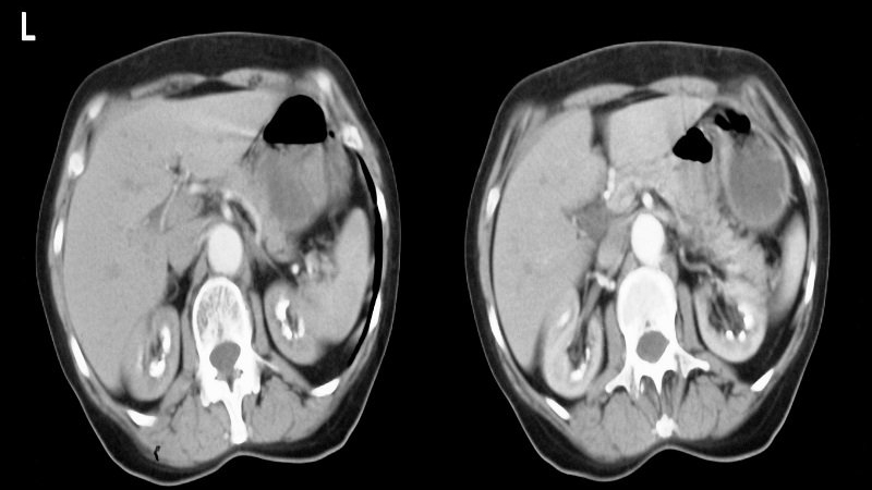 #MedStudents #InteractiveQuiz A 38-Year-Old Man With Back and Side Pain: USMLE Question http://dlvr.it/RQSG0Tpic.twitter.com/myWq97MBqg
