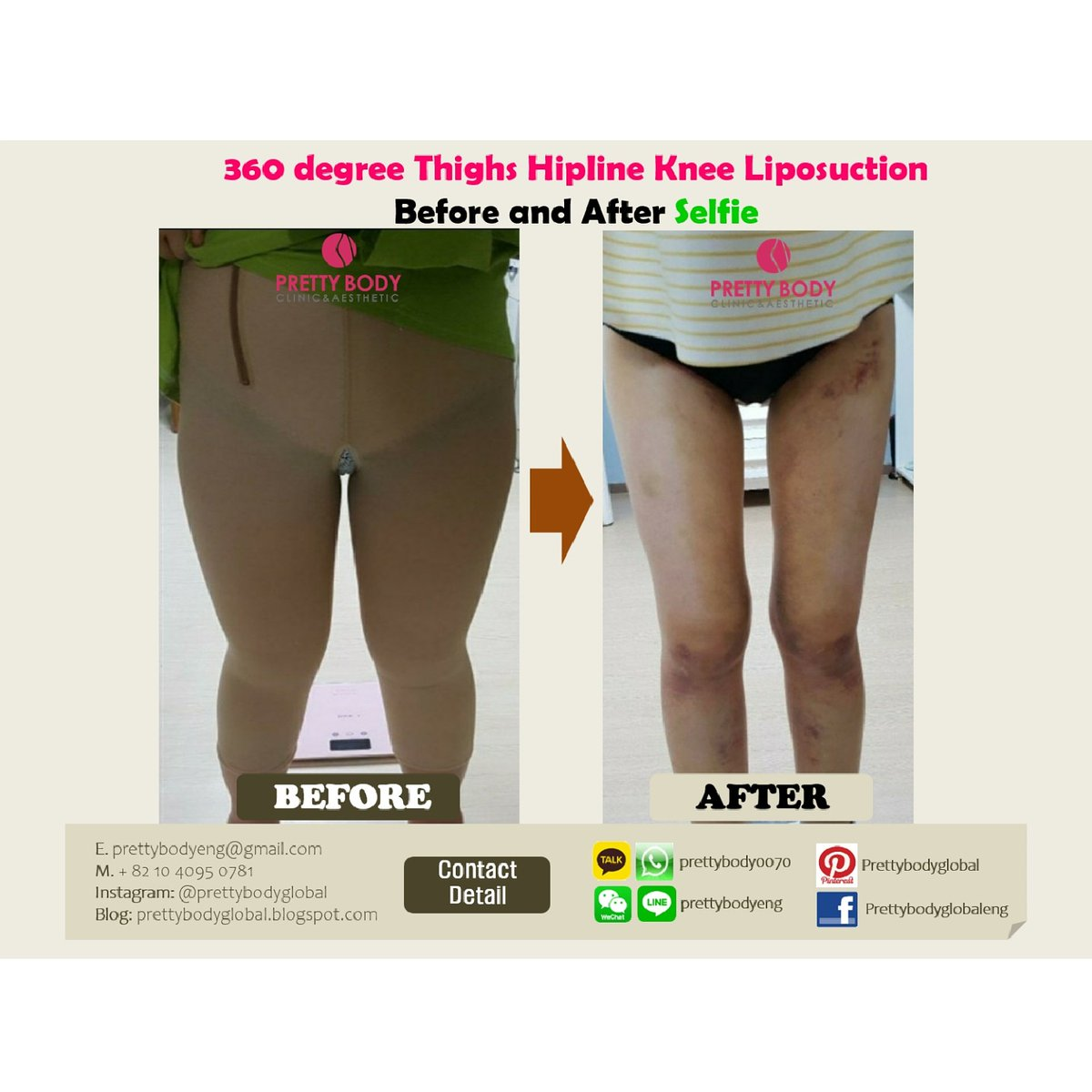Pretty Body Clinic_360 degree thighs hipline knee lippsuction selfie with review with Dr. Lim, Kyung-Soo #prettybodyclinic #liposuction # seoul #review #thighs #Korea #plasticsurgery #selfie #liposuctionbeforeandafter