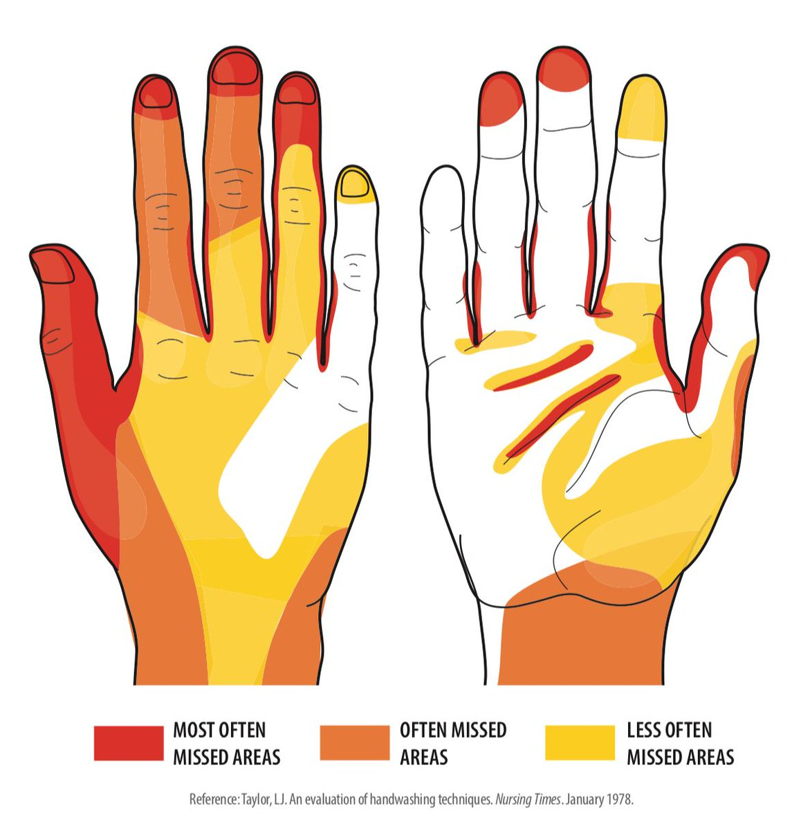 The best protection against the common flu and the #coronavavirus is to wash your hands thoroughly several times a day (not just after going to the bathroom). This chart is a reminder to not forget parts of your hands.a handy dirt map if you will. Source: https://t.co/tREqRGG4qL https://t.co/gp0yTRA2eL