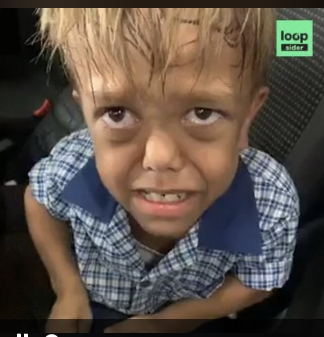 He lied! He isn't 9 years old and he wasn't bullied, he is 18years, a rich model/actor/IG celebrity in Australia    He chased clout  <br>http://pic.twitter.com/n9dbSofZHK