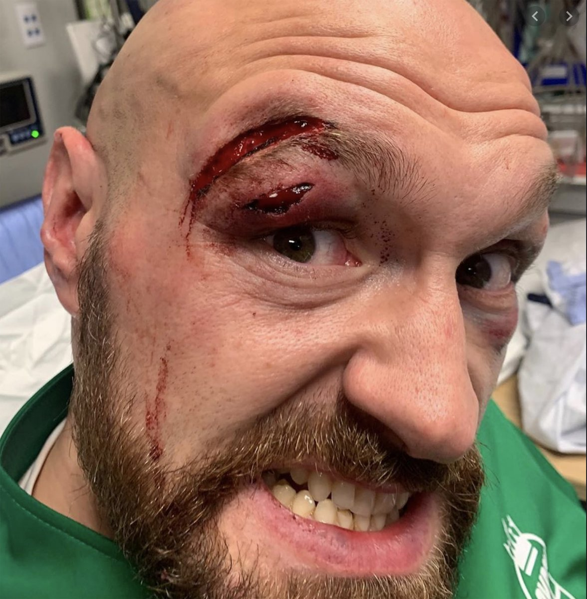 Tyson Fury cut: Deontay Wilder claims gruesome gash reopened in sparring as theory emerges #WilderFury2  https://www.express.co.uk/sport/boxing/1245848/Tyson-Fury-cut-Deontay-Wilder-training-camp-reopened-Wilder-vs-Fury-2-boxing-news…pic.twitter.com/J6ZuYiXLmB