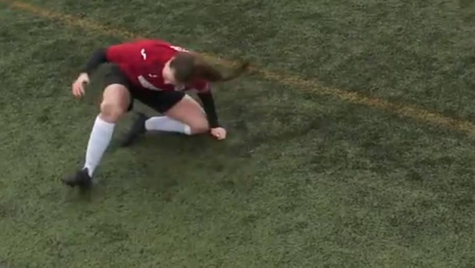 Jogadora dá tapas no próprio joelho para recolocar osso no lugar (via @esportefera)