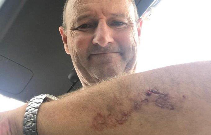 Auckland surfer Nick Minogue was bitten by a Great White shark.