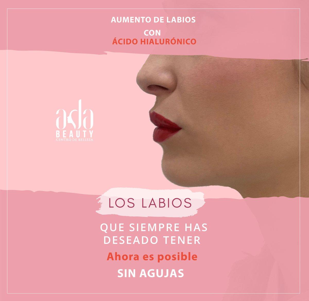 #centrodeestetica #elche #centrodeesteticaintegral #belleza #bellezaysalud #beauty #labioscarnosos #labiosperfectos #labios💋 #HIALURONPEN #aumentodelabios #sinagujas