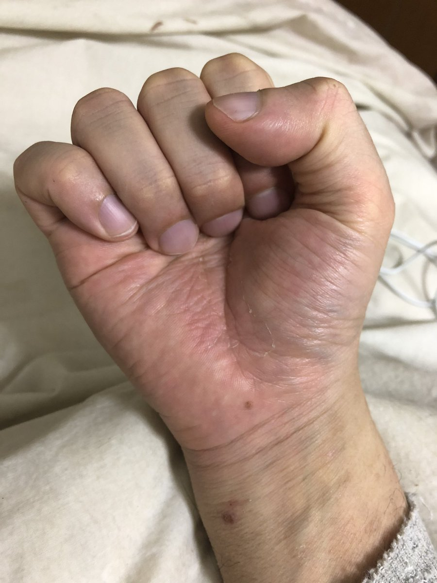 全治 指 の ヶ月 骨折 何