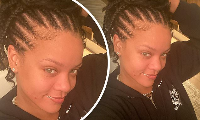 Rihanna Shows Off Shiny Pimple in First Selfie of the DECADE!  #Pimple #Rihanna #Selfie