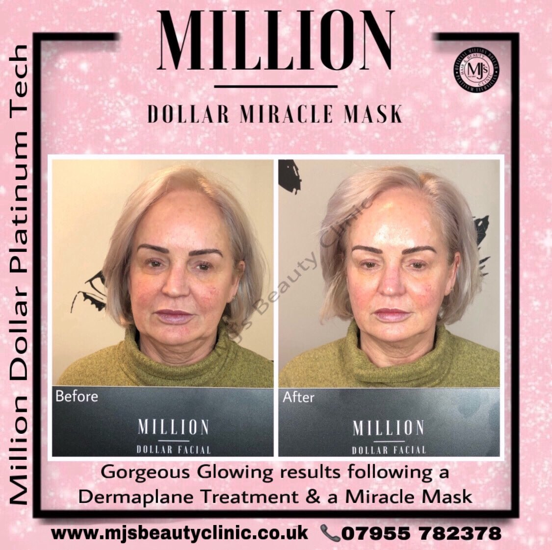 #Mothersday Offer #Milliondollar Miracle Mask Only £50 until 30th March 2020!  #royton #mjsbeautyclinic #manchester #platinumtech #manchesterfacials #skincare  #milliondollarfacials #miraclemask #iceglobes #newtreatments #flawlessskin #skinexpert #dermaplane #collagenproductionpic.twitter.com/ADb8bDwotI