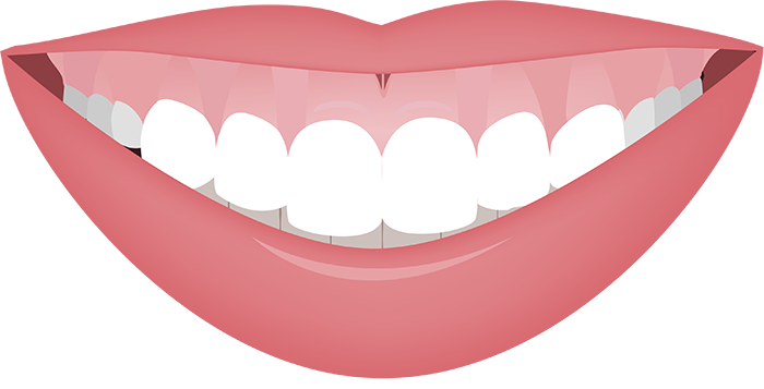 Gummy Smile - Before and After  #gummysmile #periodontist #drranashahi #smile