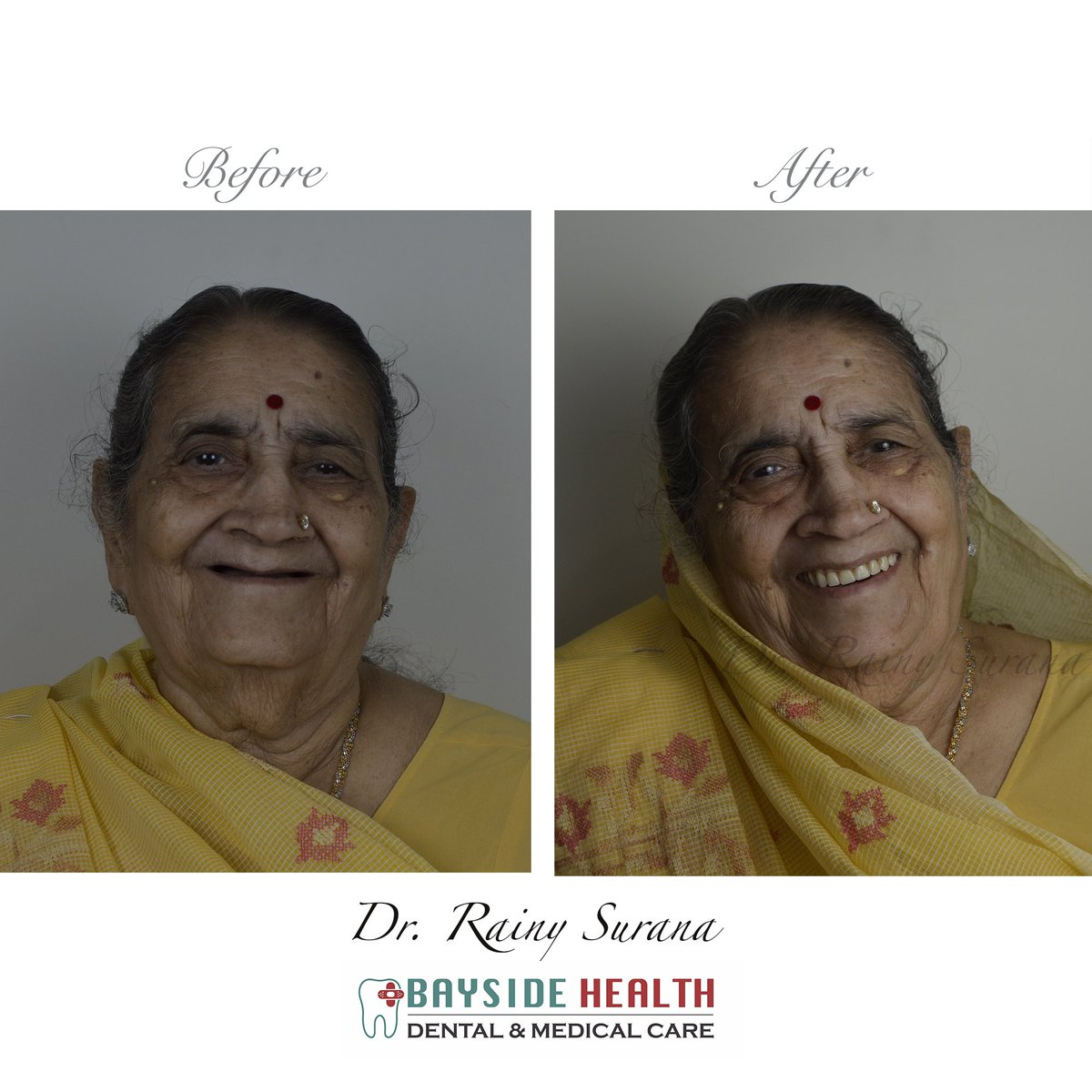 Our beautiful patient before and after! Her smile lit up our clinic, and it was such an honour to be able to achieve the desired function and esthetics! :)                                          #beauty #bestpatient #smile #gorgeous #clinic #beforeafter #southmumbai #loveteeth