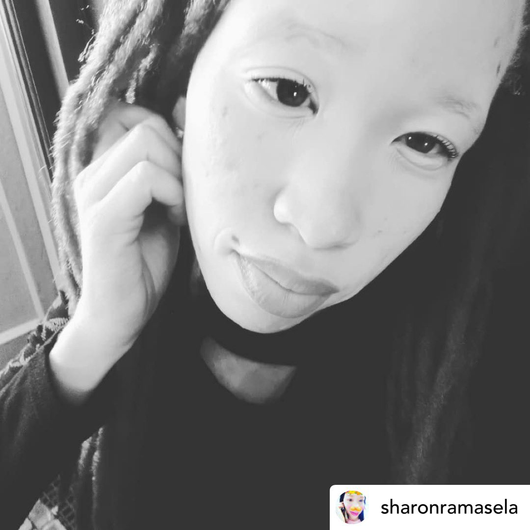 Weeeeeeeerk!!!!!!! You're gawgeous!  Posted @withregram • @sharonramasela Not picture perfect but hey #albino #tueslife #nomelanin #sweet #instagood #style #love #happy #like #follow #beautiful #cute #smile #fun #picoftheday #selfietime #followme #pic.twitter.com/TzpPS66QF2
