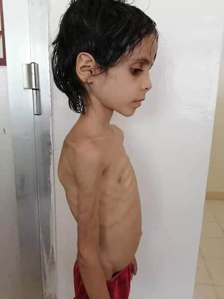 #YEMEN  Shame on all humanity to see the suffering of the children of Yemen and continue to keep a defending silence. It is a disgrace to all humanity to keep watching the children of Yemen in agony and dying from preventable diseases and man-made starvation without trying to 1/2